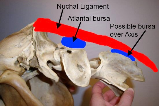 cervicale wervelkolom_atlas_axis_ligamentum nuchae